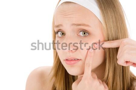 Acne tiener vrouw puistje witte Stockfoto © CandyboxPhoto
