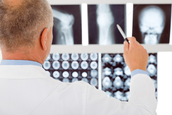 Mature doctor male point at set x-ray Stock photo © CandyboxPhoto