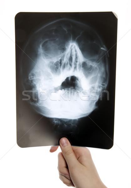 Roentgen photo of skull Stock photo © carenas1