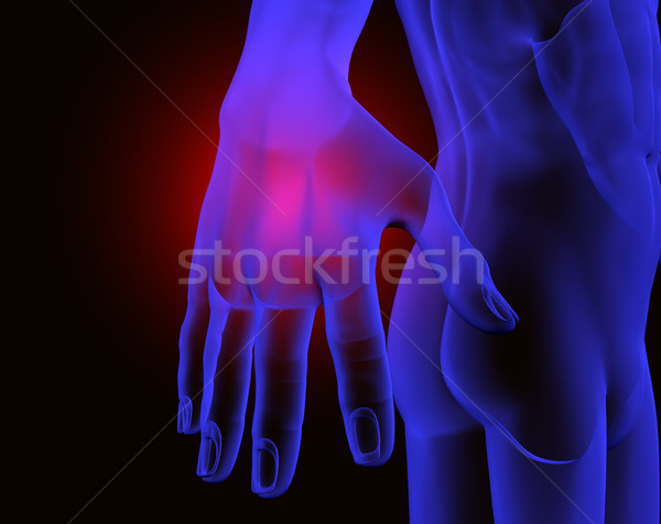 hand and pain Stock photo © carloscastilla