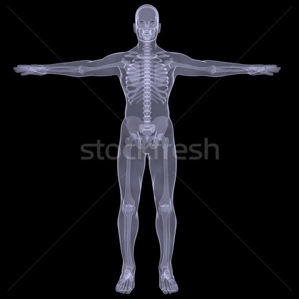 Xray человека оказывать черный тело назад Сток-фото © cherezoff