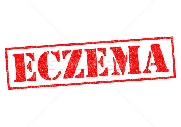 ECZEMA Stock photo © chrisdorney