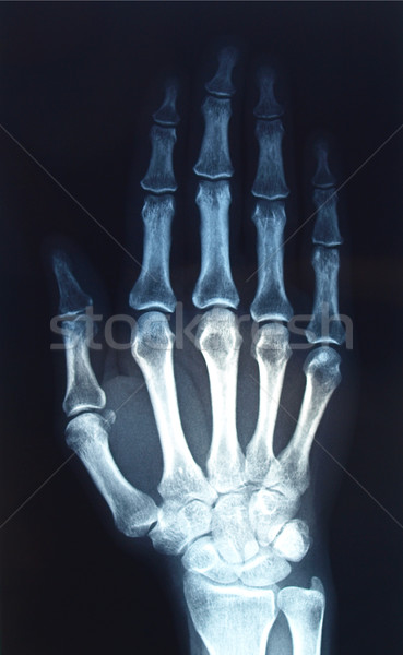 Xray Stock photo © claudiodivizia