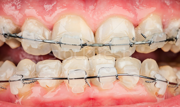 Braces Stock photo © cookelma