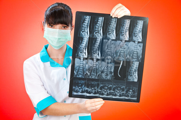 Doctor with xray Stock photo © cookelma