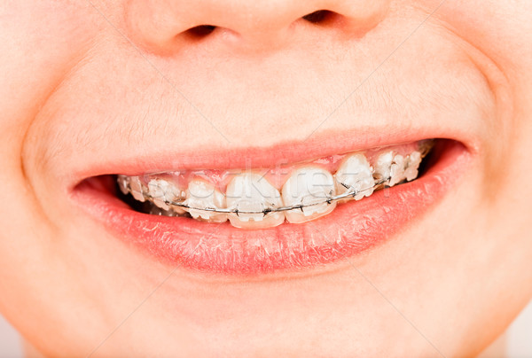 Tirantes sonrisa nino nino labios sonriendo Foto stock © cookelma