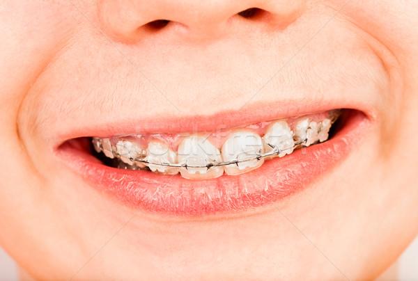 Bretels glimlach jongen kind lippen glimlachend Stockfoto © cookelma