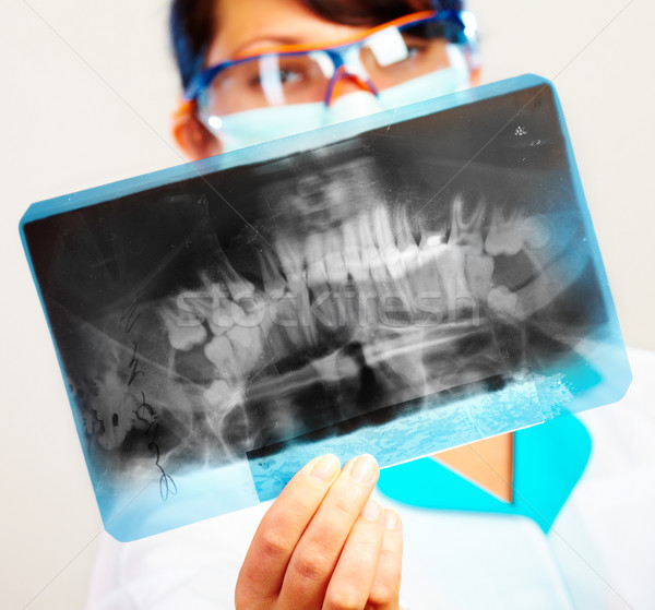 Médecin xray Homme mâchoire accent main Photo stock © cookelma