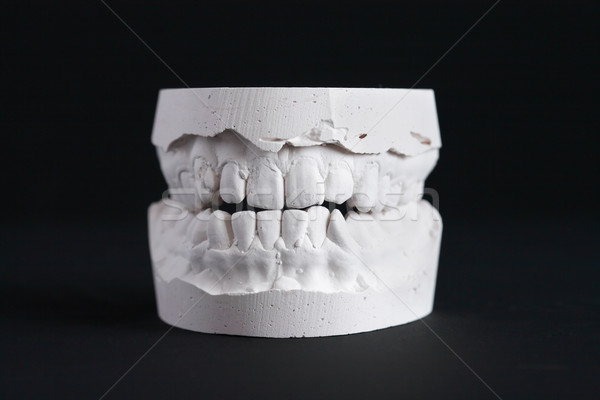 Dental Mold Stock photo © cosma
