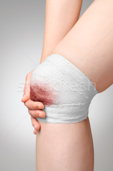 Injured knee with bloody bandage Stock photo © CsDeli
