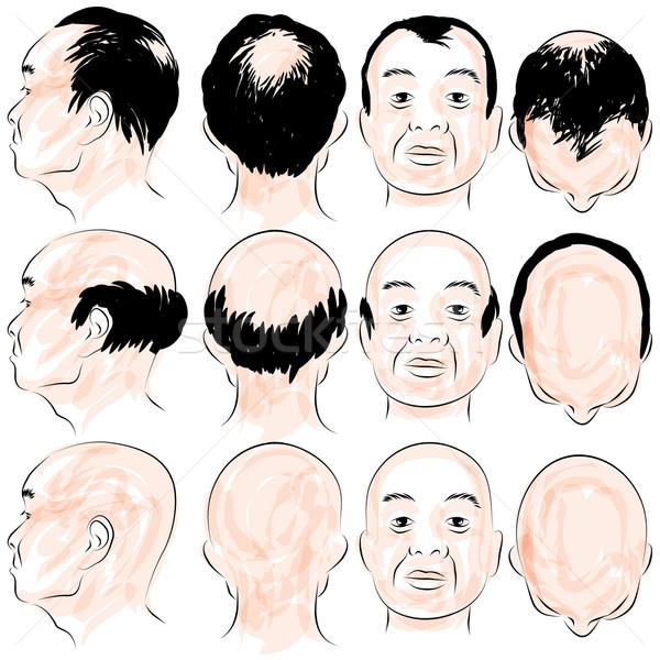 Asian Male Baldness Pattern Stock photo © cteconsulting