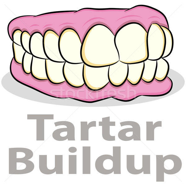 Tartar Buildup on Teeth Stock photo © cteconsulting