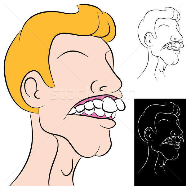 Man With Overbite Stock photo © cteconsulting