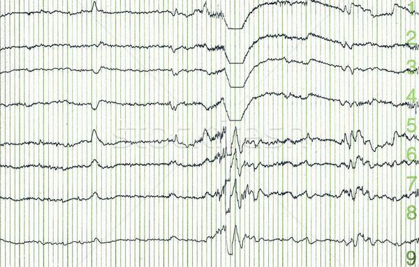 electro-encephalogramme Stock photo © cynoclub