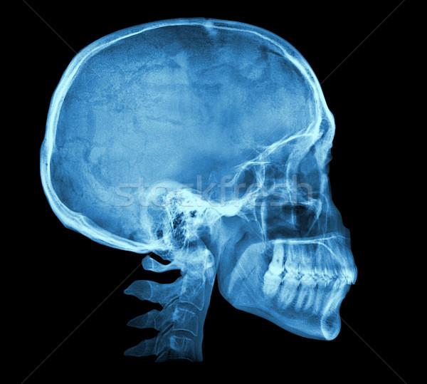 Humanos cráneo Xray imagen aislado negro Foto stock © daboost