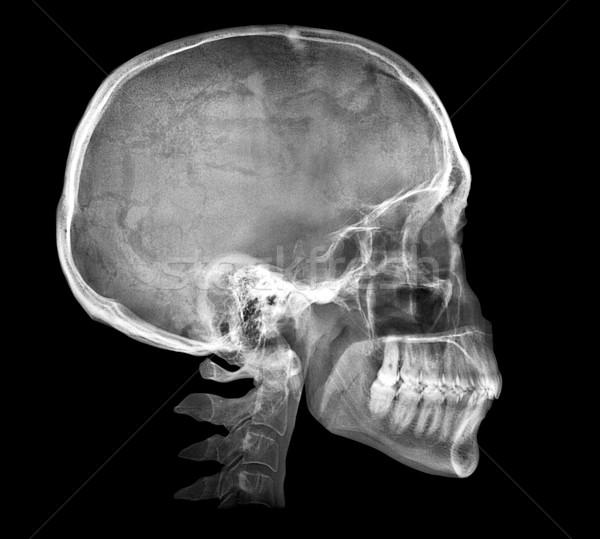 Human skull X-ray image Stock photo © daboost