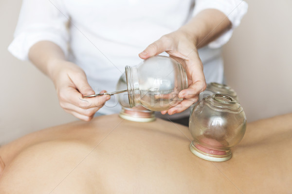 Fire cupping cups on back of female patient in Acupuncture thera Stock photo © dashapetrenko