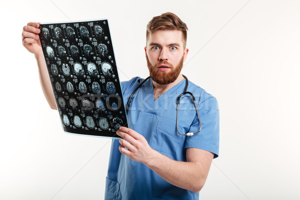 Portrait of a shocked young medical doctor holding CT scan Stock photo © deandrobot