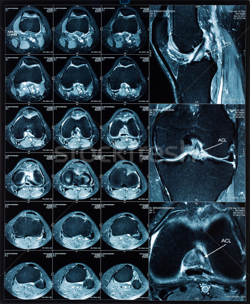 Magnetic resonance tomography (MRT) images of knee Stock photo © dmitry_rukhlenko