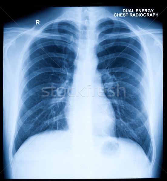 Сток-фото: Xray · изображение · человека · груди · здорового · сердце