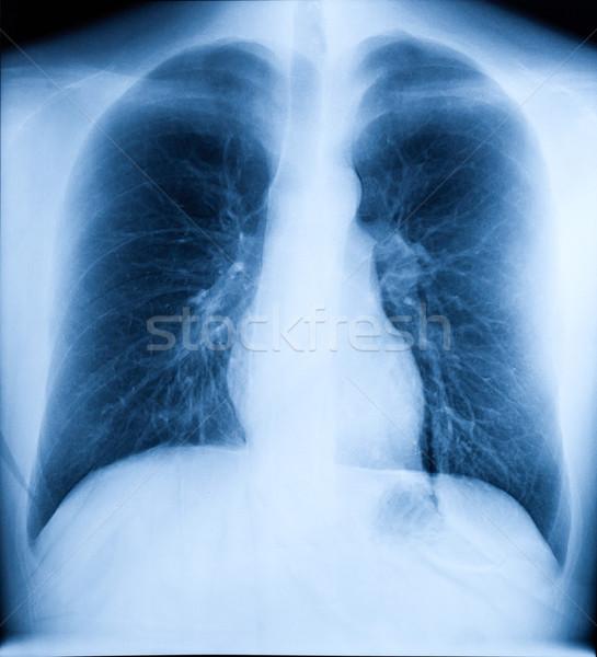 Xray изображение человека груди здорового сердце Сток-фото © dmitry_rukhlenko