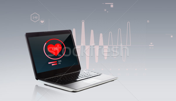 laptop computer with heart beat icon Stock photo © dolgachov