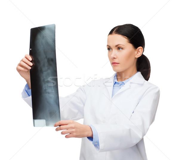 Foto d'archivio: Grave · femminile · medico · guardando · Xray · sanitaria