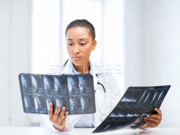 Foto d'archivio: African · medico · guardando · sanitaria · medici · radiologia