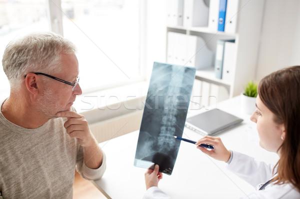 Foto d'archivio: Medico · colonna · vertebrale · Xray · senior · uomo · ospedale