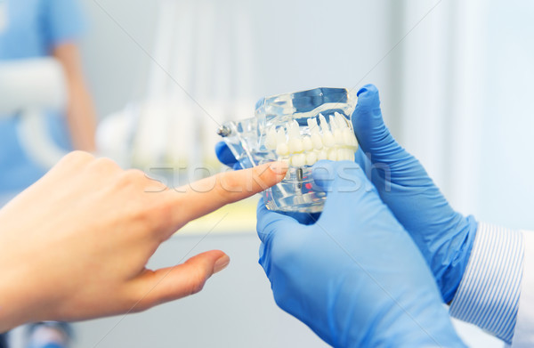 close up of dentist hands with teeth or jaw model Stock photo © dolgachov