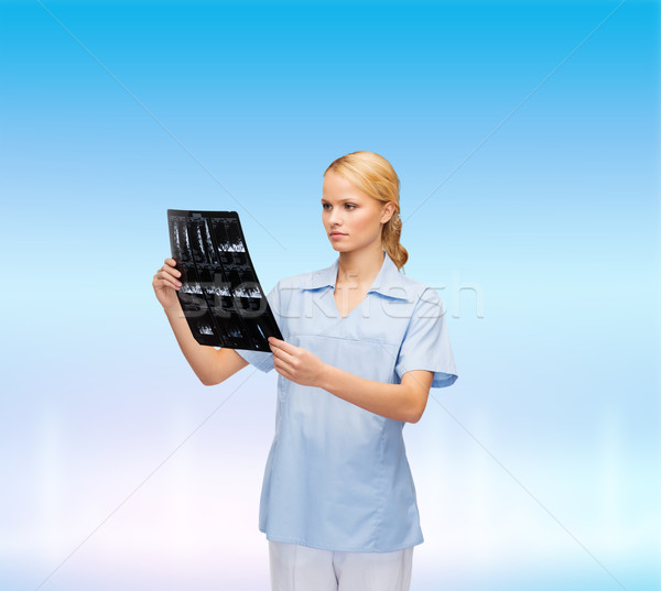 serious doctor or nurse looking at x-ray Stock photo © dolgachov