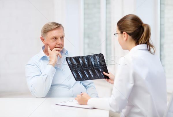 женщины врач старик глядя Xray здравоохранения Сток-фото © dolgachov