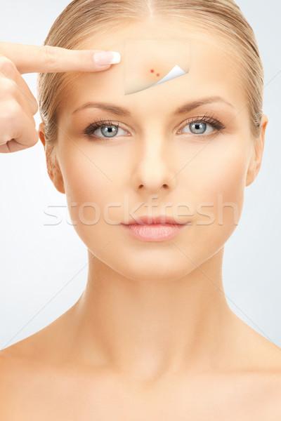 Daha fazla akne resim güzel bir kadın işaret Stok fotoğraf © dolgachov