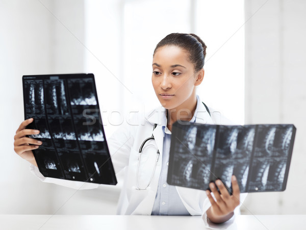 african doctor looking at x-rays Stock photo © dolgachov