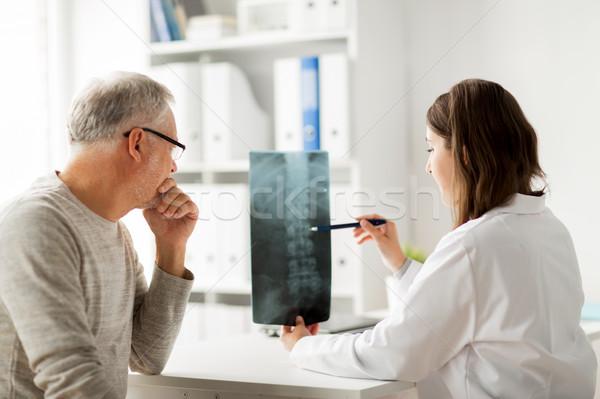 Orvos gerincoszlop röntgen idős férfi kórház Stock fotó © dolgachov