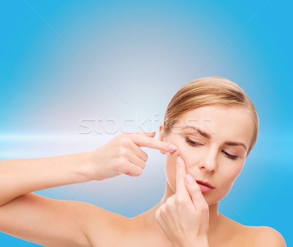 young woman squeezing acne spots Stock photo © dolgachov