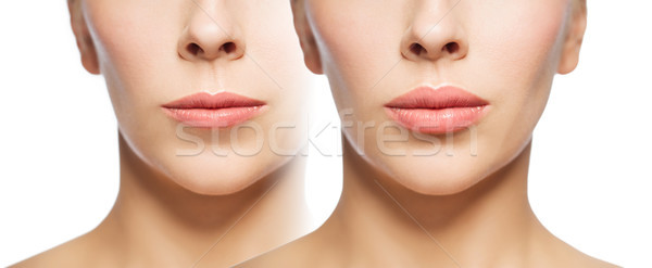Stock photo: woman before and after lip fillers