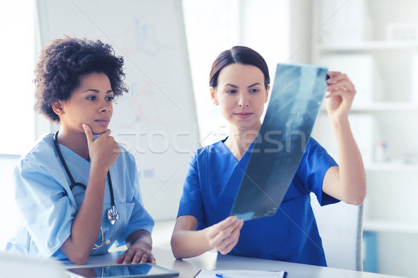女性 医師 X線 画像 病院 放射線学 ストックフォト © dolgachov