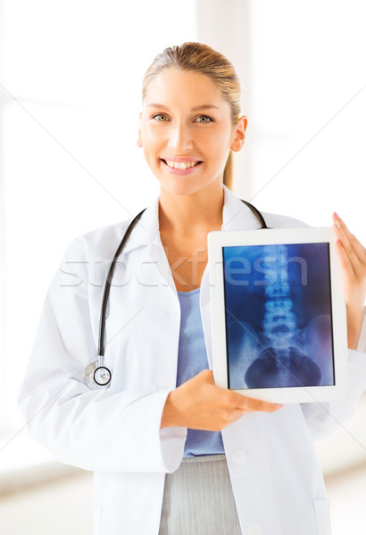 female doctor with x-ray on tablet pc Stock photo © dolgachov