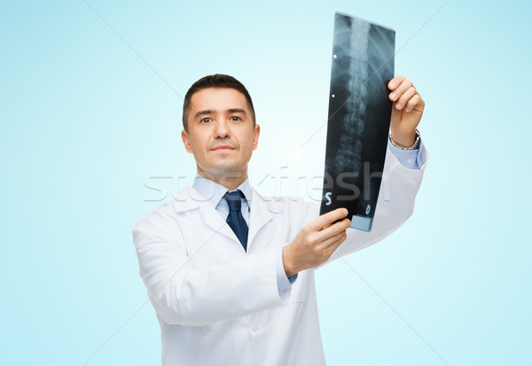 male doctor in white coat holding x-ray Stock photo © dolgachov