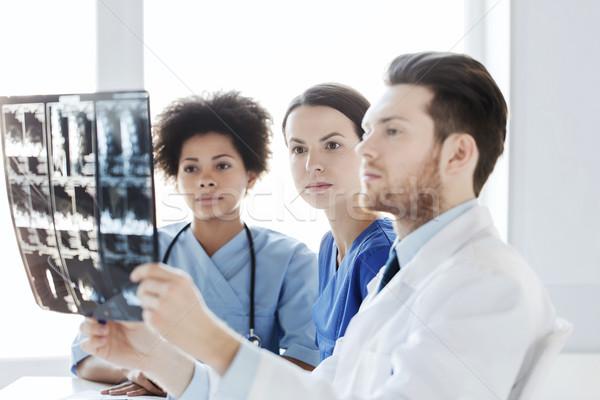 Grup doktorlar bakıyor xray hastane radyoloji Stok fotoğraf © dolgachov