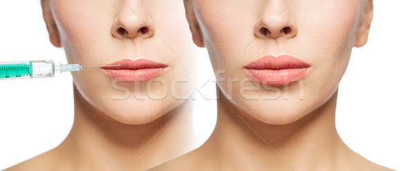 Stock photo: woman before and after lip fillers injection