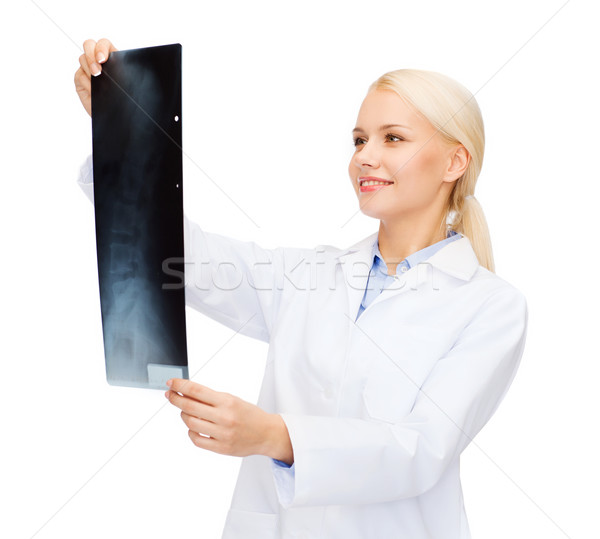Sorridere femminile medico guardando Xray sanitaria Foto d'archivio © dolgachov