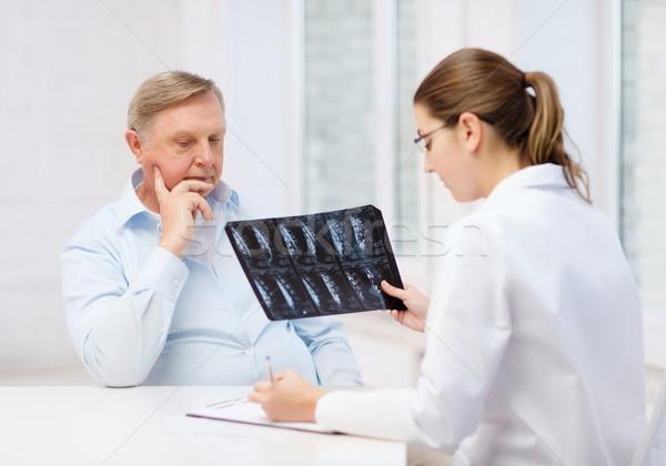 Kadın doktor yaşlı adam bakıyor xray sağlık Stok fotoğraf © dolgachov