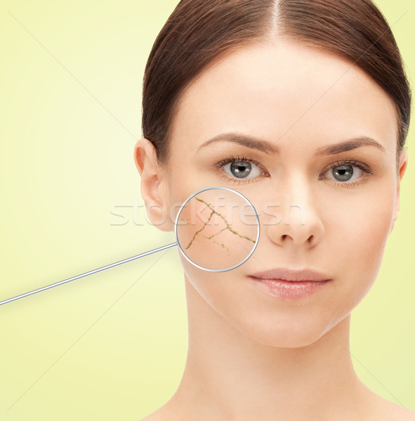 woman face with dry dehydrated skin Stock photo © dolgachov
