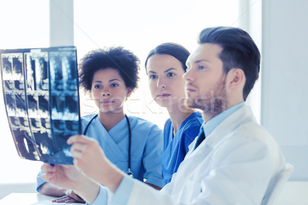 group of doctors looking to x-ray at hospital Stock photo © dolgachov