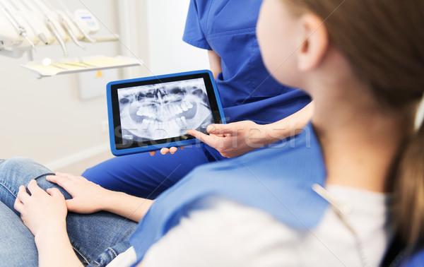 стоматолога Xray пациент девушки Сток-фото © dolgachov
