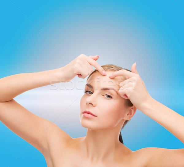 Mulher jovem acne saúde beleza cara Foto stock © dolgachov