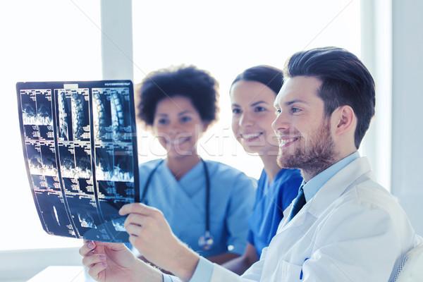 Grupy szczęśliwy lekarzy xray obraz Zdjęcia stock © dolgachov