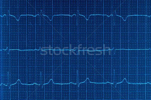 Ekg elektrokardiogram fotó kék szív orvosi Stock fotó © dzejmsdin